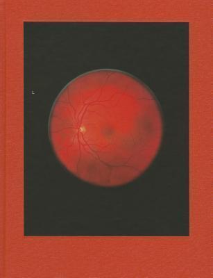 Retinal Shift  by  Mikhael Subotzky