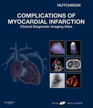 Complications of Myocardial Infarction: Clinical Diagnostic Imaging Atlas  by  Stuart Hutchison