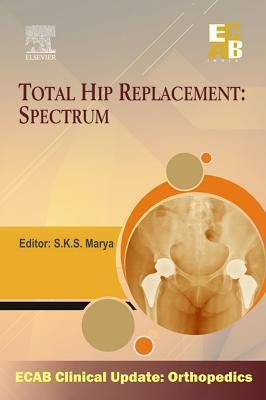 Total Hip Replacement Spectrum - Ecab  by  Sks Marya
