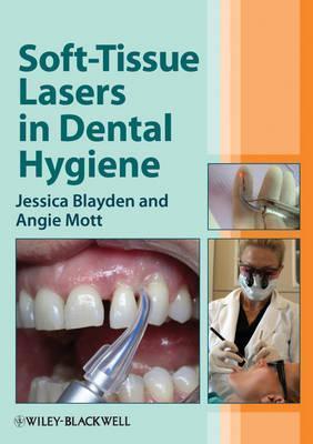 Soft-Tissue Lasers in Dental Hygiene  by  Jessica Blayden