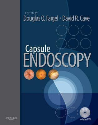 Capsule Endoscopy [With DVD ROM] Douglas O. Faigel