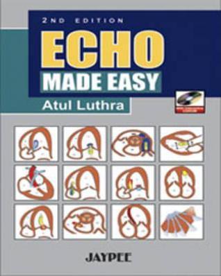 Echo Made Easy Atul Luthra