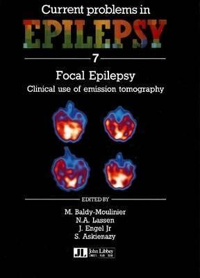 Focal Epilepsy: Proceedings Of The International Symposium On Focal Epilepsy: Clinical Use Of Emission Tomography, Held In Paris, May 1989  by  M. Baldy-Moulinier