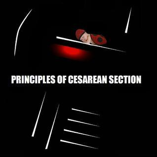 Principles of Cesarean Section Naira R. Matevosyan