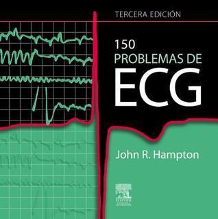 150 Problemas de ECG: --  by  John R. Hampton