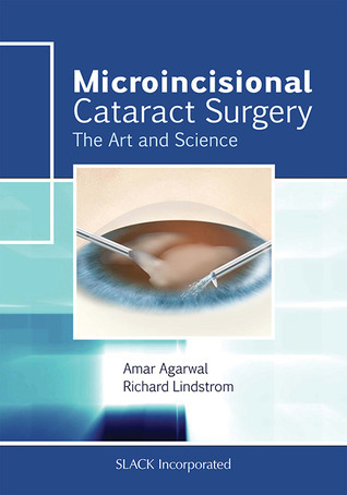 Microincisional Cataract Surgery: The Art and Science Amar Agarwal