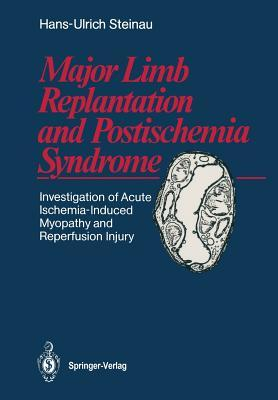Major Limb Replantation and Postischemia Syndrome: Investigation of Acute Ischemia-Induced Myopathy and Reperfusion Injury  by  Hans-Ulrich Steinau
