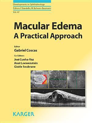 Macular Edema G Coscas