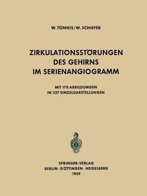Das Rantgenbild Des Schadels Bei Intrakranieller Drucksteigerung Im Wachstumsalter  by  Wilhelm Tönnis