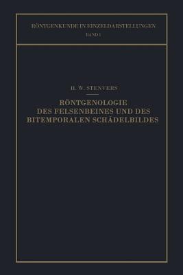 Rontgenologie Des Felsenbeines Und Des Bitemporalen Schadelbildes: Mit Besonderer Berucksichtigung Ihrer Klinischen Bedeutung  by  H W Stenvers