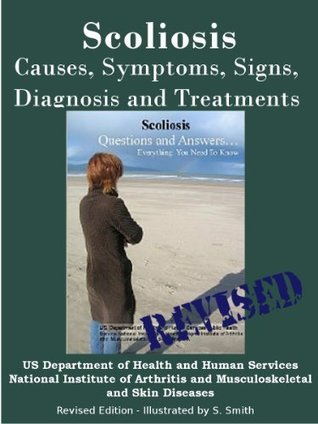 SCOLIOSIS: REVISED EDITION -CAUSES, SYMPTOMS, SIGNS, DIAGNOSIS AND TREATMENTS  by  National Institutes of Health