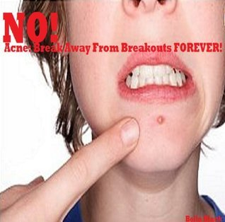 Acne: Break Away From Breakouts FOREVER!  by  Belle Black