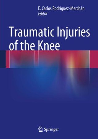 Articular Cartilage Defects of the Knee: Diagnosis and Treatment  by  E. Carlos Rodrxecguez-Merchxe1n