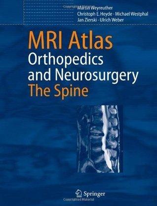 MRI Atlas: Orthopedics and Neurosurgery, The Spine Martin Weyreuther