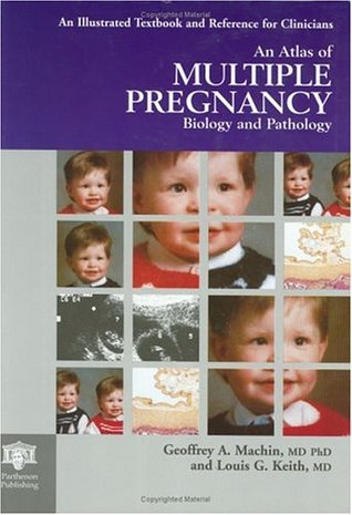 An Atlas of Multiple Pregnancy: Biology and Pathology  by  Geoffrey A. Machin