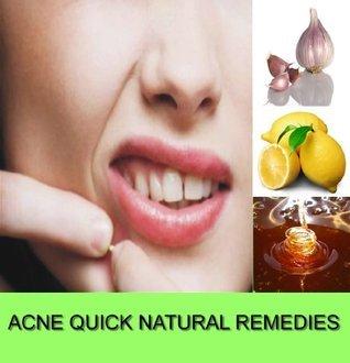 Acne Quick Natural Remedies  by  Huzaifa Idris