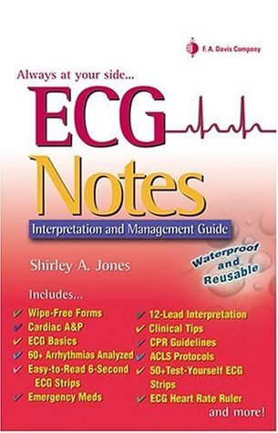ECG Notes: Interpretation And Management Guide  by  Shirley A. Jones