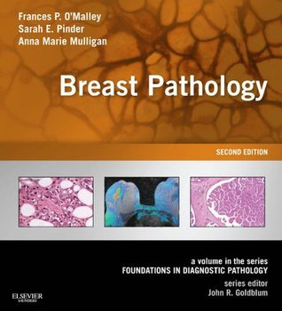 Breast Pathology: A Volume in the Series: Foundations in Diagnostic Pathology Frances P. OMalley