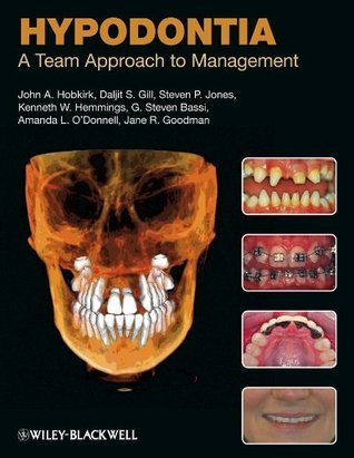 Hypodontia: A Team Approach to Management  by  John A. Hobkirk