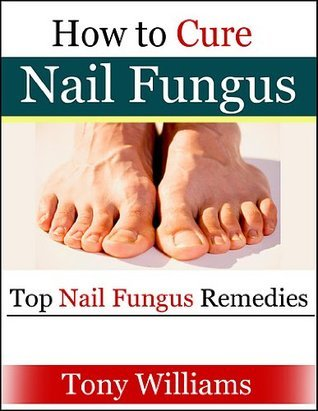How To Cure Nail Fungus - Top Nail Fungus Remedies Tony Williams