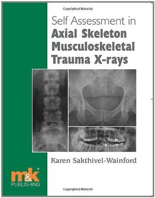 Self Assessment in Axial Skeleton Musculoskeletal Trauma X-rays  by  Karen Sakthivel-Wainford