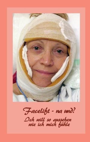 Facelift - na und?: Ich will so aussehen, wie ich mich fühle Bernhard Siegmund