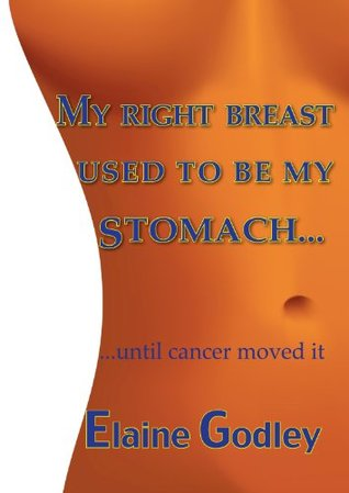 My Right Breast Used to be My Stomach  by  Elaine Godley