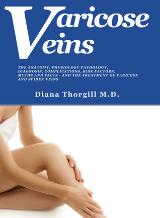 Varicose Veins: The Anatomy, Physiology Pathology, Diagnosis, Complications, Risk Factors, Myths and Facts and the Treatment of Varicose and Spider Veins  by  Diana Thorgill