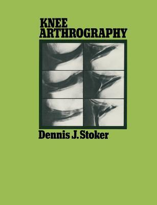 Knee Arthrography Dennis J. Stoker