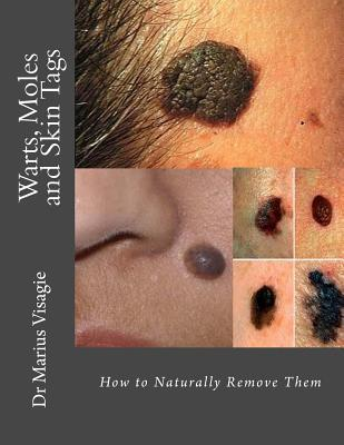 Warts, Moles and Skin Tags: How to Naturally Remove Them Dr Marius Visagie