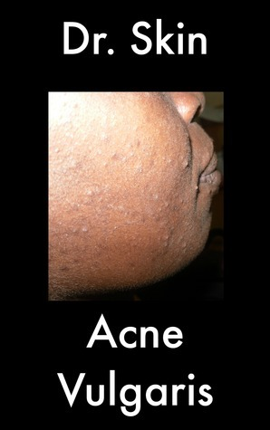 Acne Vulgaris  by  Dr Skin