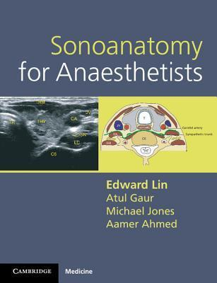 Sonoanatomy for Anaesthetists  by  Edward Lin