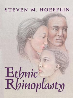 Ethnic Rhinoplasty Steven M. Hoefflin