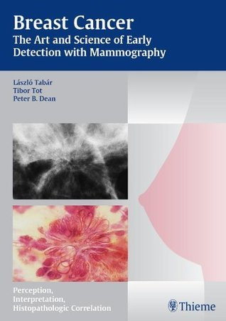 Breast Cancer - The Art and Science of Early Detection with Mammography: Perception, Interpretation, Histopathologic Correlation Laszlo Tabar