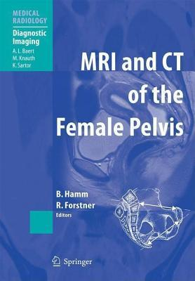 MRI and CT of the Female Pelvis. Medical Radiology. Bernd Hamm
