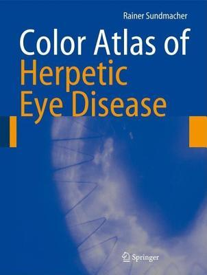 Color Atlas of Herpetic Eye Disease: A Practical Guide to Clinical Management  by  Rainer Sundmacher