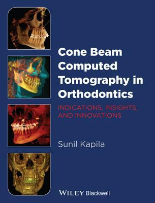 Cone Beam Computed Tomography in Orthodontics: Indications, Insights, and Innovations Sunil Kapila