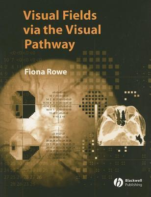 Visual Fields Via the Visual Pathway  by  Fiona Rowe