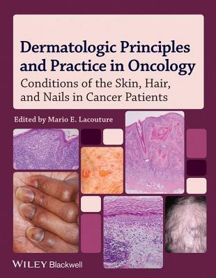 Dermatologic Principles and Practice in Oncology: Conditions of the Skin, Hair, and Nails in Cancer Patients  by  Mario E. Lacouture