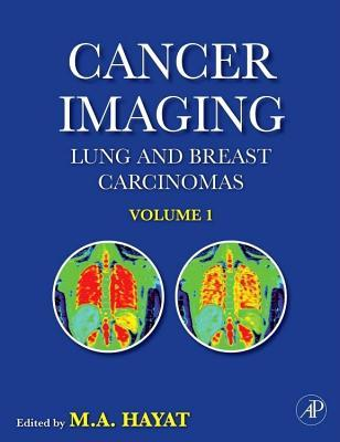Cancer Imaging: Lung and Breast Carcinomas M.A. Hayat