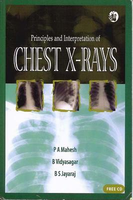 Principles and Interpretation of Chest X-Rays [With CDROM] P.A. Mahesh