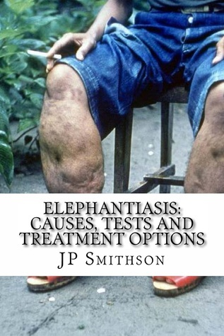 Elephantiasis: Causes, Tests and Treatment Options JP Smithson