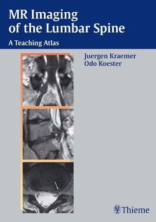 MR Imaging of the Lumbar Spine: A Teaching Atlas  by  Jürgen Krämer