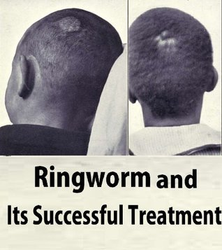 Ringworm and Its Successful Treatment  by  John P. Turner