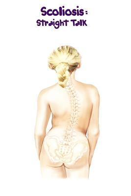 Scoliosis: Straight Talk  by  Sealy V