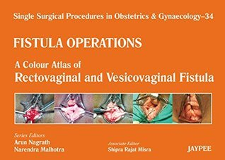 A Colour Atlas of Rectovaginal and Vesicovaginal Fistula (Volume 34) (Single Surgical Procedures in Obstetrics and Gynaecology)  by  Nagrath Arun