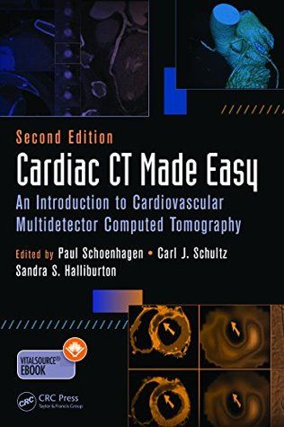 Cardiac CT Made Easy: An Introduction to Cardiovascular Multidetector Computed Tomography, Second Edition  by  Paul Schoenhagen