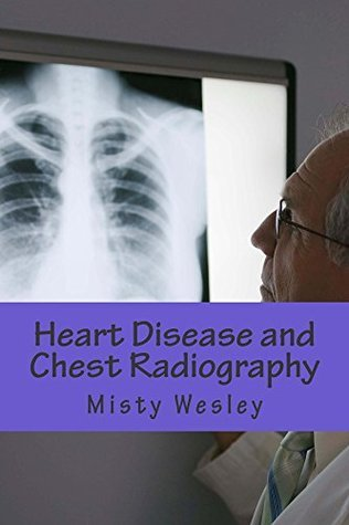 Heart Disease and Chest Radiography  by  Misty Wesley