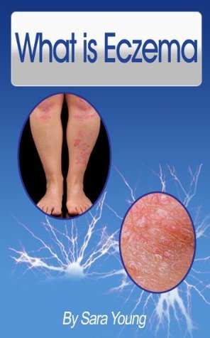 What is Eczema  by  Sara Young