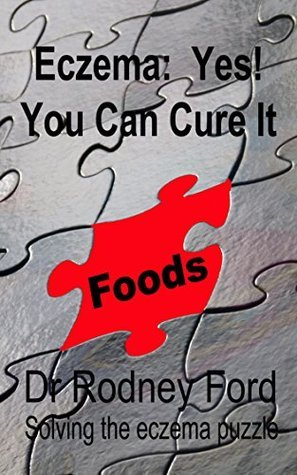 Eczema: Yes! You Can Cure It: Foods - the missing piece. 10 steps to solve the eczema puzzle. Rodney Ford